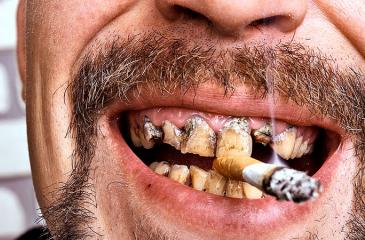 Smoking cigarettes is one of the leading causes of oral cancer