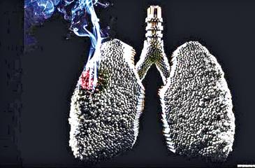 Smoking will cause the gradual corrosion of your lung tissues