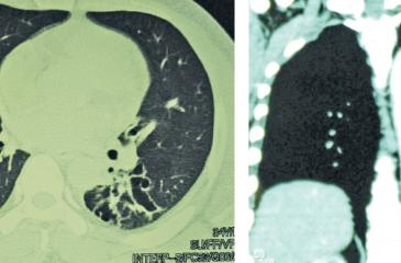 Toxic gases can directly damage lungs causing lung diseases