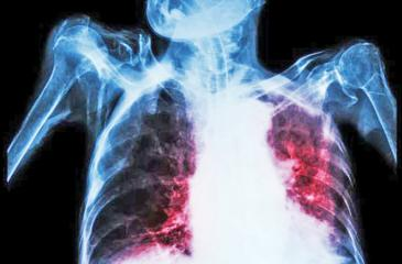 TB can cause damage to the lungs