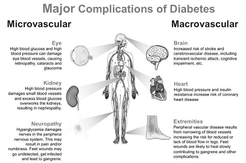 Diabetes In Men Causes Major Health Problems Sunday Observer